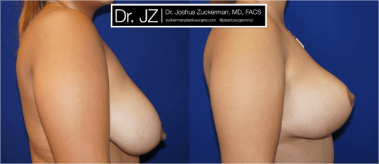 Right profile view of Breast Lift patient, female, 1 month post-op. Vertical breast lift.