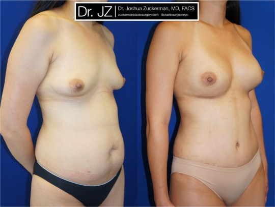 Right oblique view of Mommy Makeover' patient, female, 2 months post-op. Breast augmentation with 400cc Mentor Round silicone implants. Liposuction of the abdomen and flanks. Tummy tuck performed as well.