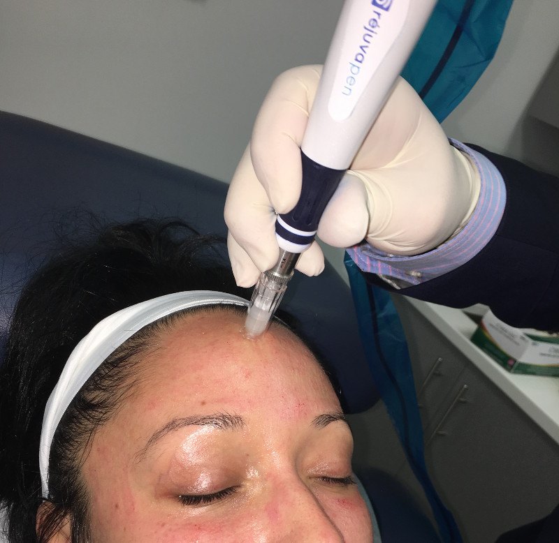 In this image, Dr. Zuckerman is performing a Rejuvapen™ microneedling treatment for a patient to correct acne scarring and other skin issues on the forehead in his New York City office.