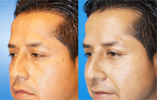 Left oblique view of Rhinoplasty patient, male, 1.5 months post-op. Dorsal hump reduction, nasal bony asymmetry corrected.