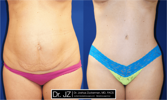 Frontal view of Abdominoplasty patient, female, 1 month post-op. 1 Liter of fat removed via liposuction of the abdomen and flanks as well.