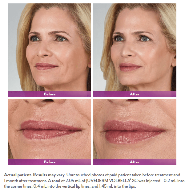 Volbella treatment for vertical lines around the lips and lip augmentation before and after. Source: official before&after photo from manufacturer Allergan.