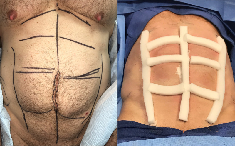 Dr. Zuckerman performs targeted liposuction to the abdomen, also known as abdominal etching, to improve the aesthetic appearance of the abdominal muscles. This cosmetic surgery is most commonly performed for men.