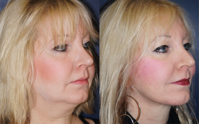 Dr. Zuckerman can address many issues associated with facial aging with a face lift including mid-face descent, jowls along the jawline, a tired or hollowed appearance around the eyes, and more.