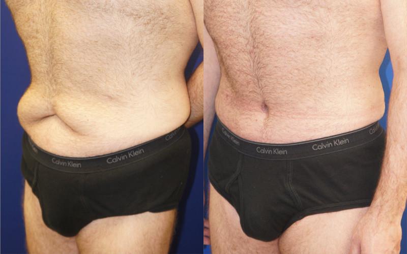 Plastic Surgery For Men Nyc Top Ranked Zuckerman Plastic Surgery