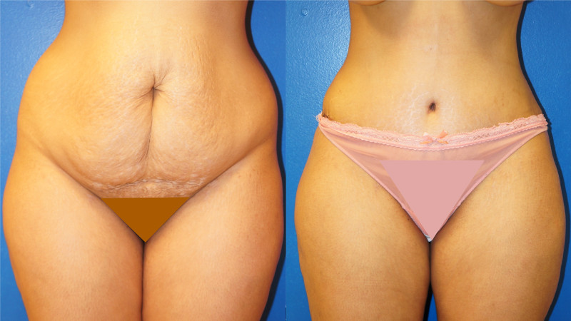 Frontal view of one of Dr. Zuckerman's tummy tuck surgery (abdominoplasty) outcomes.