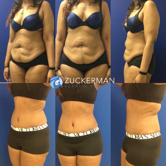 Tummy Tuck, Liposuction, and Buttock Augmentation at ...