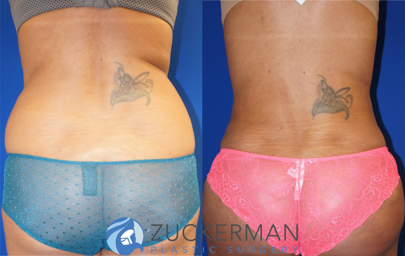 Liposuction Liposculpture Nyc Top Ranked Zuckerman Plastic Surgery