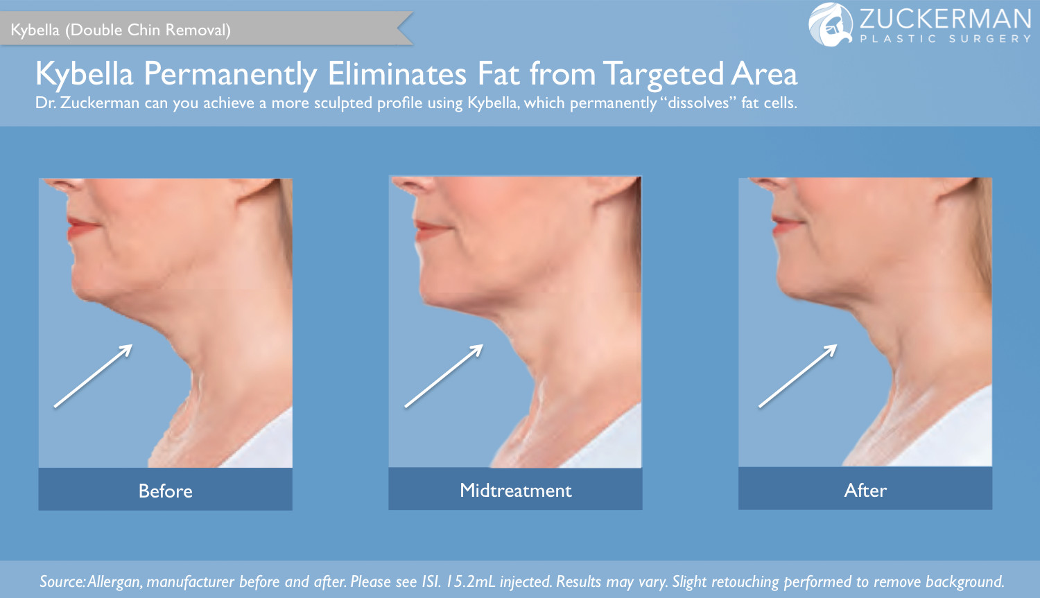 Kybella Injections (Double Chin Removal) Treatment NYC – Top