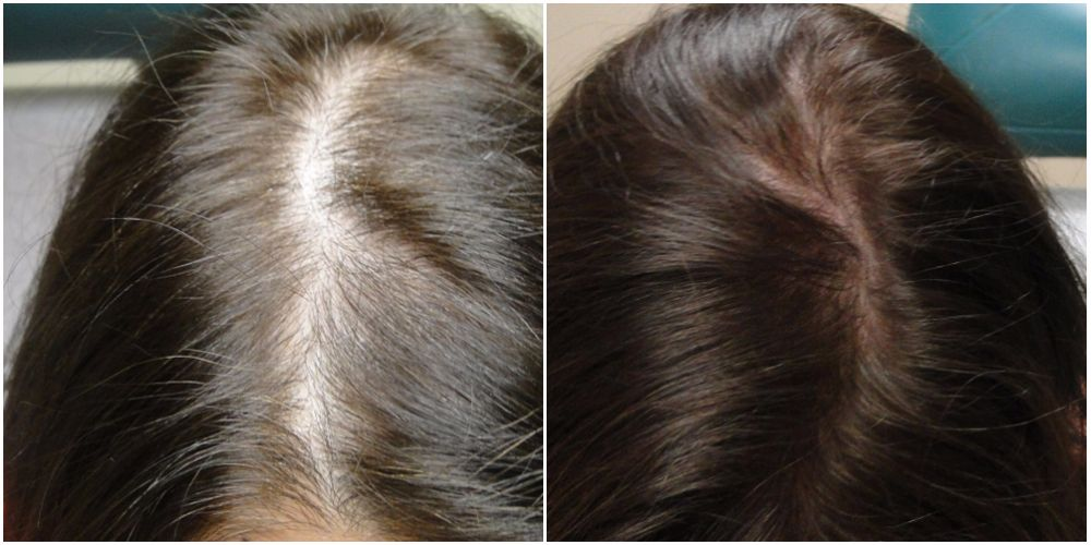 PRP Before and after 5