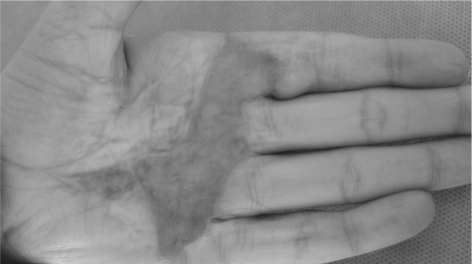 Skin Graft on a person's hand.
