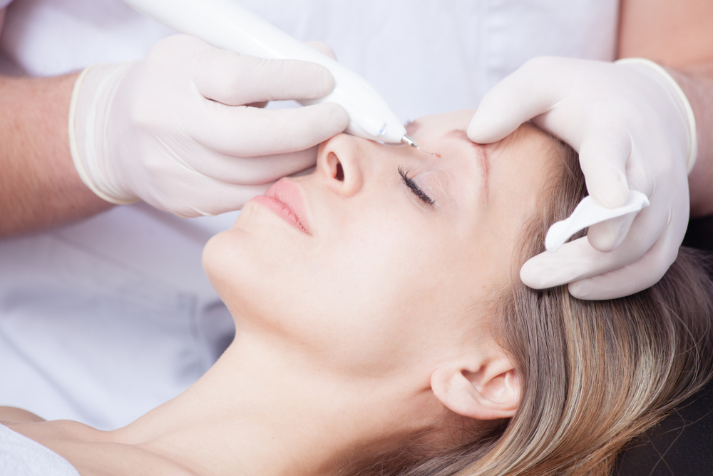 Facial Warts How To Identify And Treat This Common Nuisance