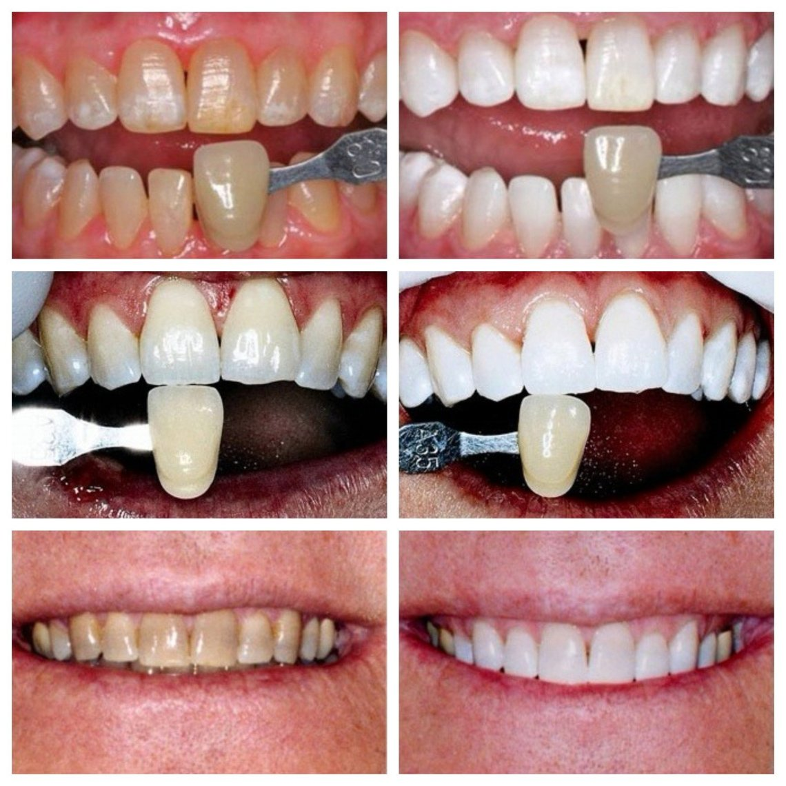 Everything You Need To Know About The Kor Teeth Whitening System