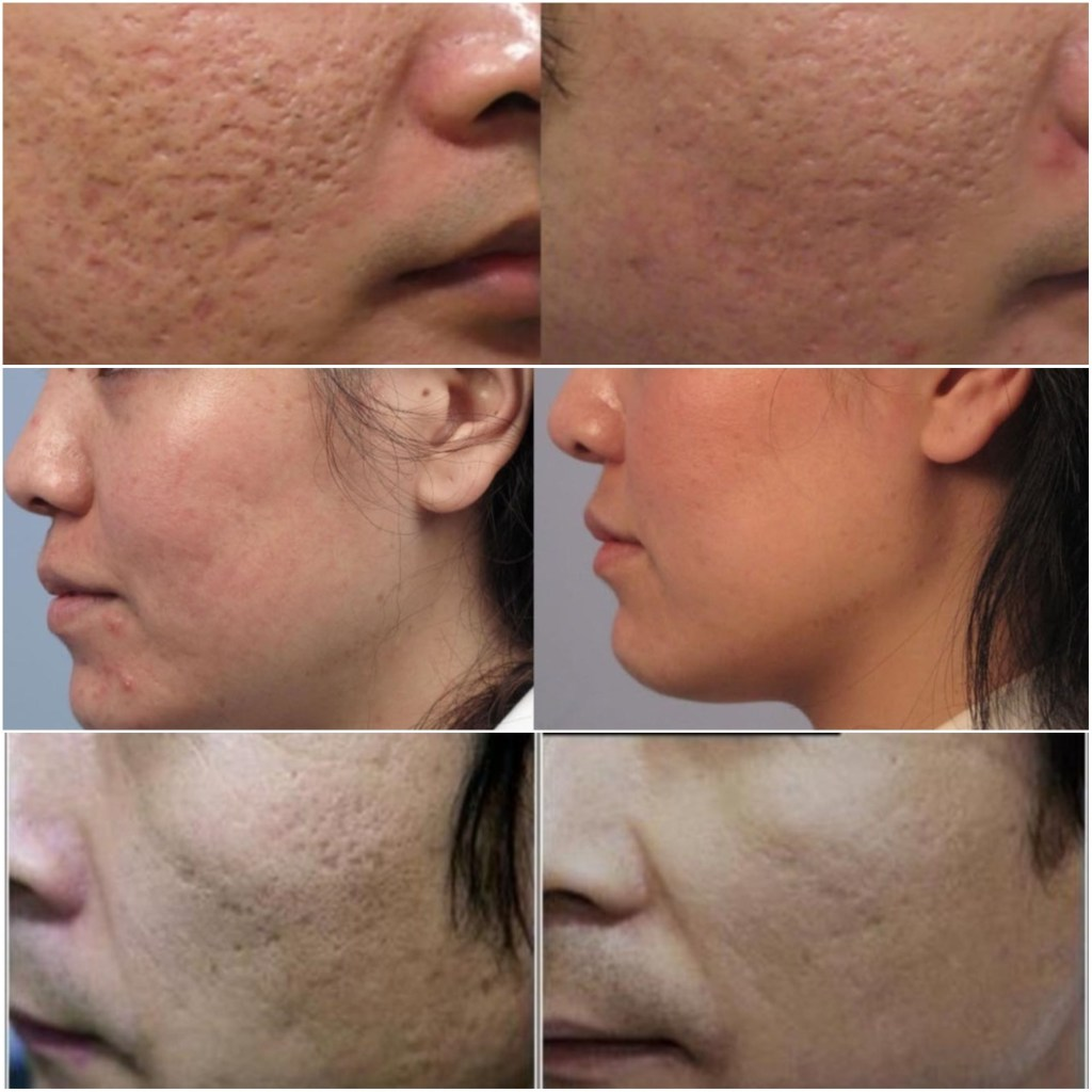 before and after laser acne