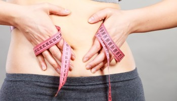 Panniculectomy: Procedure, Recovery, Pictures, and Cost