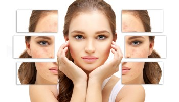 Laser Treatments for Rosacea: Frequently Asked Questions