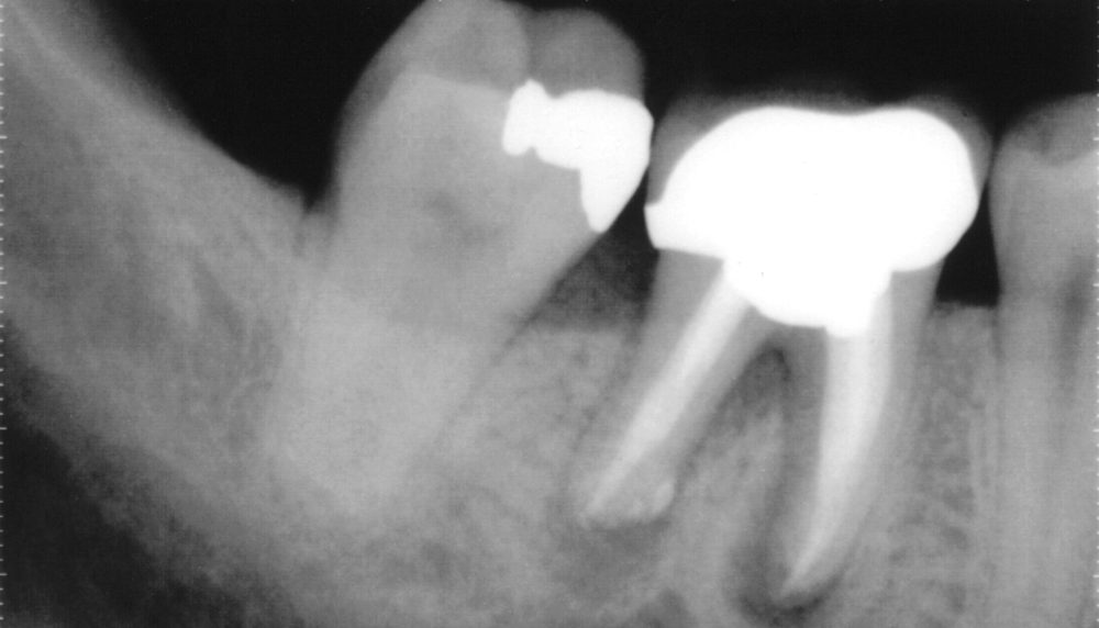 Failed Root Canal with infection in the gum between the roots, due to a crack in the Molar
