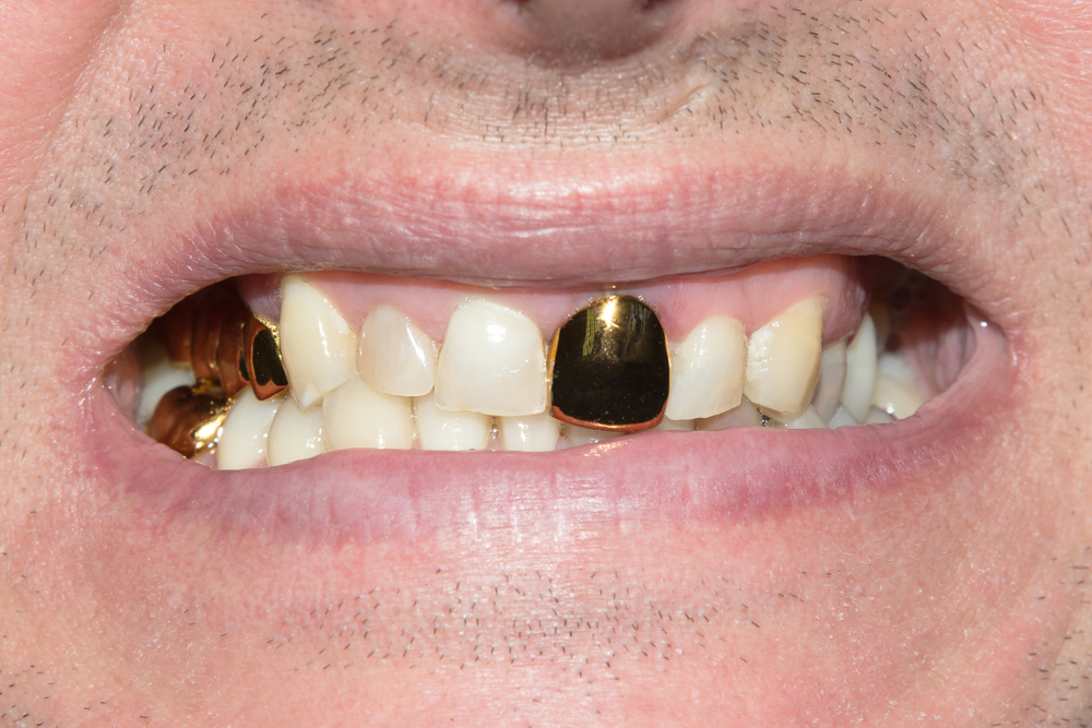 1000 Images About Gold Teeth On Pinterest: What's A Smile Worth? The Pros And Cons Of Gold Teeth Implants
