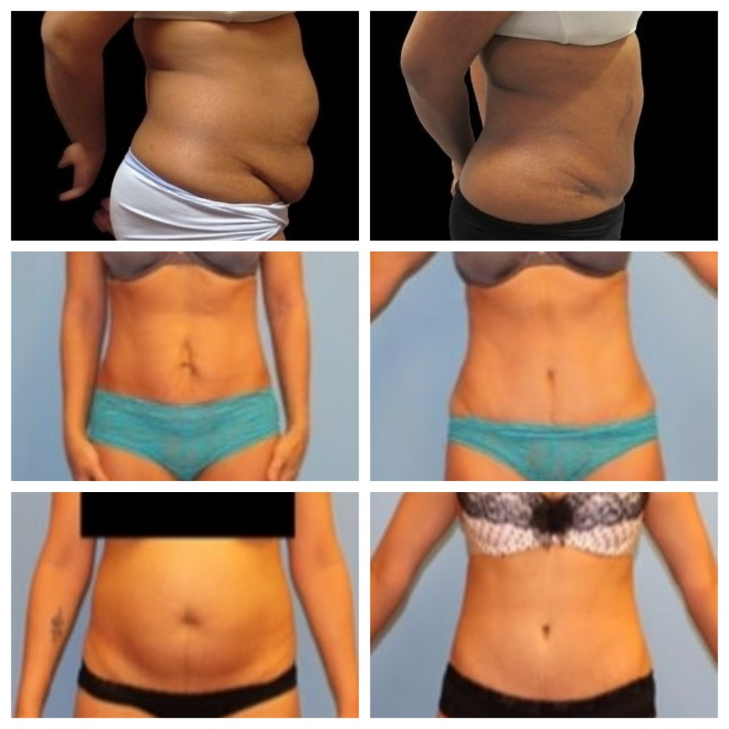 Liposuction Vs Tummy Tuck Results Pictures Recovery And Cost