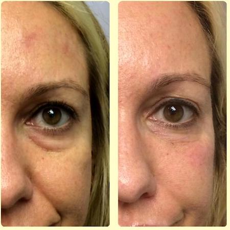 Botox Under Eyes Does It Work Before And Afters Side Effects And Cost
