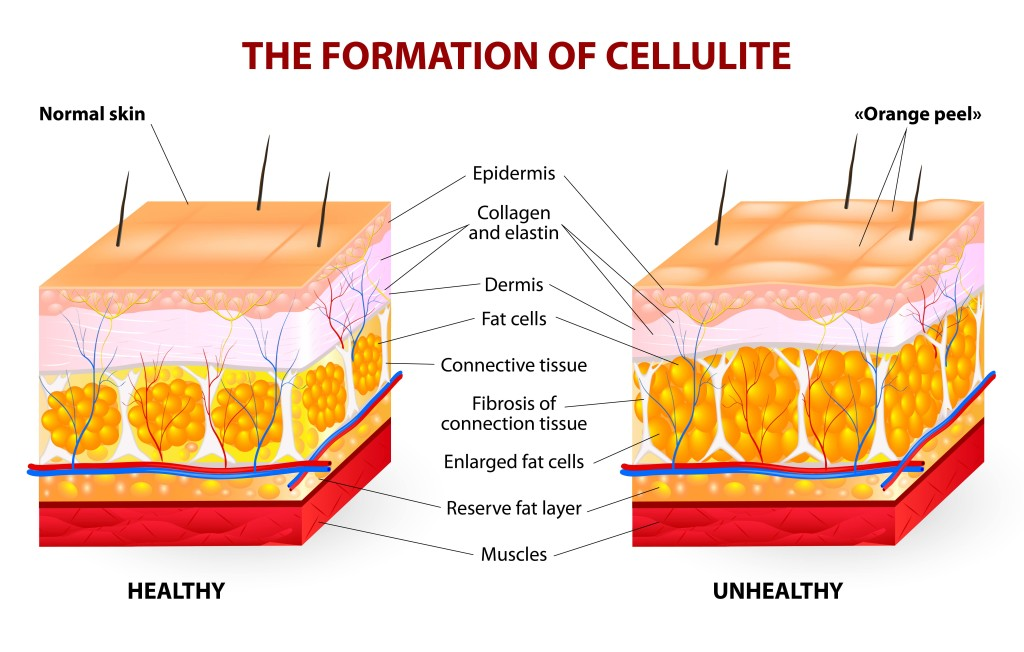 cellulite cross-section