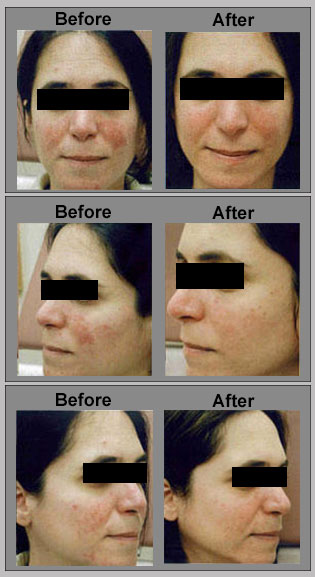 Photodynamic therapy (PDT) for rosacea