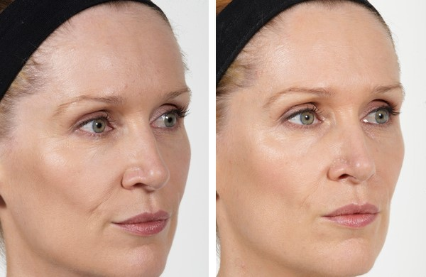 dermal fillers for hollow temples