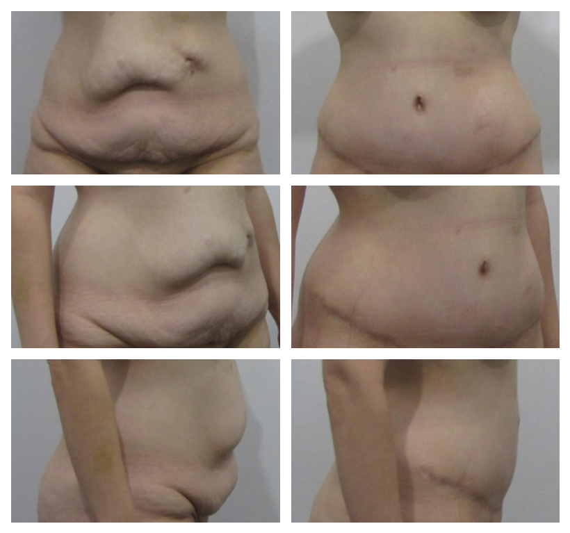 How To Tighten Loose Skin After Weight Loss Zwivel