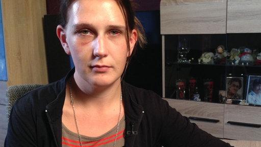Frau mit Hämatomen am Auge und verletzter Hand