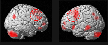 Side view of the brain of healthy elderly subjects compared to schizophrenics