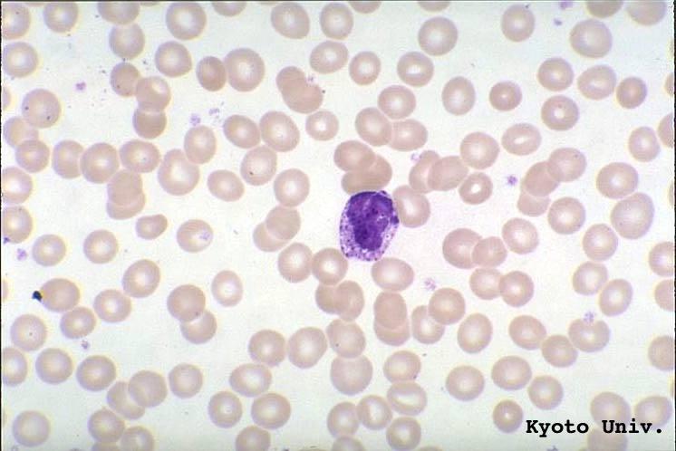 Smear Neutrophils Weber Lymphocytes Blood Department And