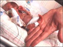 In this photo released by the Loyola University Health System, Rumaisa Rahman, is seen next to a hand a few weeks after she was born at the Loyola University Medical Center in Maywood, Ill.