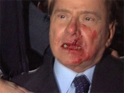 This video image made available by RAI TG3 shows Italian Premier Silvio Berlusconi after an attacker hurled a statuette at Berlusconi striking the leader in the face at the end of a rally in Milan, Italy on Sunday Dec. 13, 2009 leaving the 73-year-old media mogul with a bloodied mouth and looking stunned.