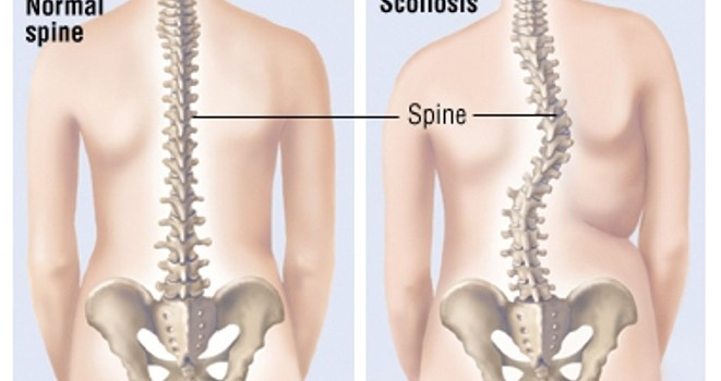 scoliosis treatment treatments Xcell Medical Elyria