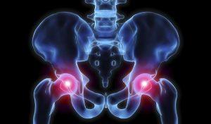 hip pain treatments Xcell Medical Elyria