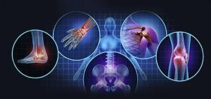 osteoarthritis treatments Xcell Medical
