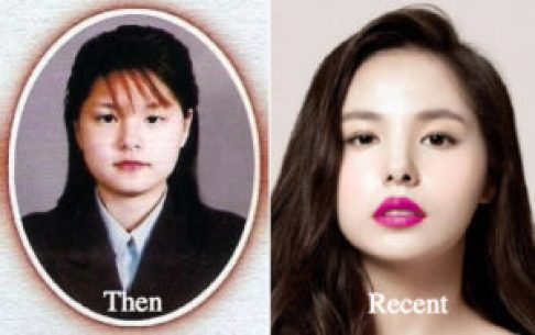 While most Korean celebrities choose to be more private about plastic surgery, here's a list of 9 Korean Actors admitting to have plastic surgery done - Min Hyo Rin