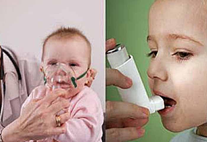 konsensus asma anak 2017, asma pada anak idai, asma bronkial pada anak idai pdf, tatalaksana asma, tatalaksana asma pdf, asma idai 2017, jurnal asma pdf, asma bronkial pdf,