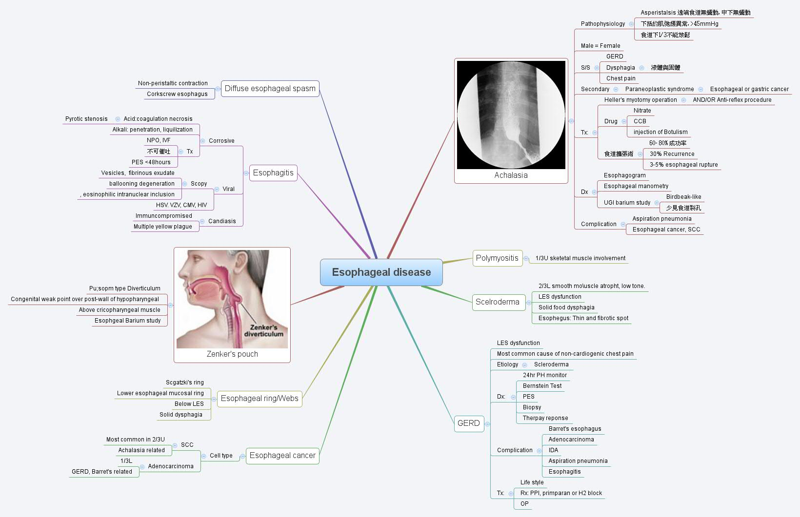 Esophageal Cancer Operation Procedure