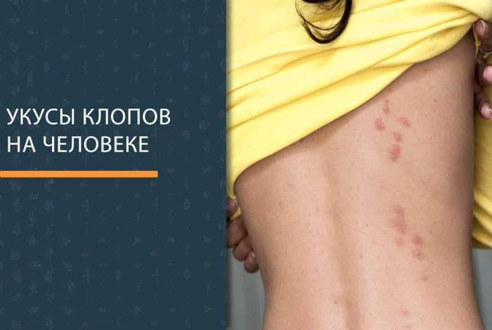 Как выглядит укус постельного клопа на человеке? Фото