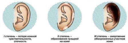 Phải làm gì nếu tai bị mờ - làm thế nào và những gì để điều trị tê cóng