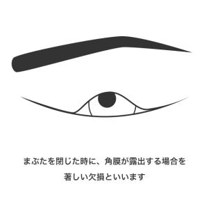 1号 1眼のまぶたの一部に欠損を残し又はまつげはげを残すもの_1