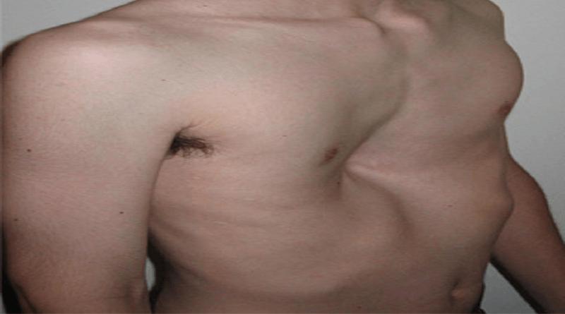 Кинезитерапия при обущарски гръден кош