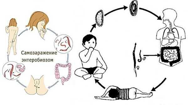 Стул с белыми вкраплениями у взрослого. Кал с белыми прожилками у детей и взрослых: причины и лечение заболевания кишечника