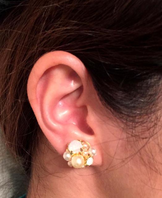 耳が切れる 原因