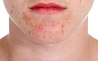 acné peau acnéique traitement