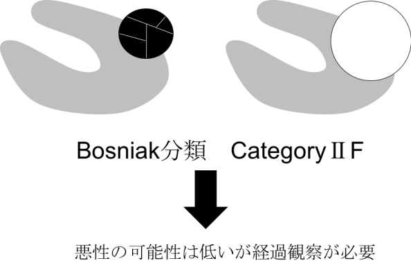 bosniak classification category2F