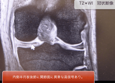 meniscal lesions of the knee1