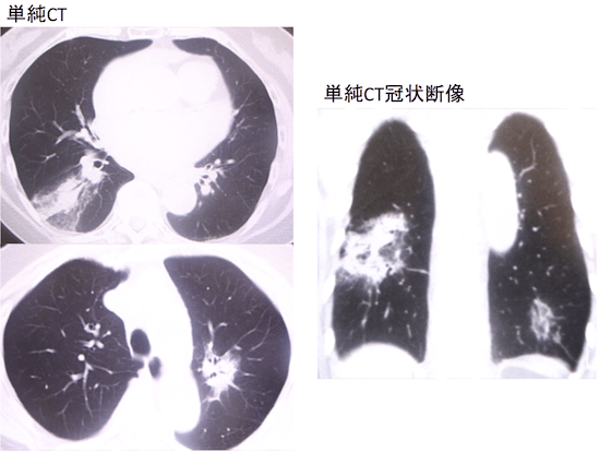 pneumonic pattern