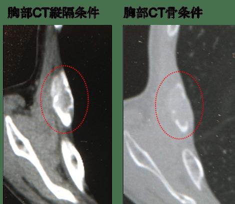 bone metastasis of rib